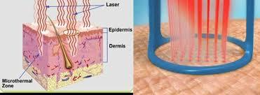 Fractional Laser CO2