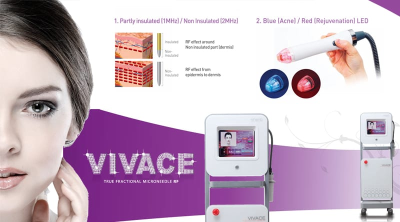 Σύστημα Vivace